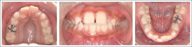 成長期の治療(1期治療)ガタガタの歯並び 施術前