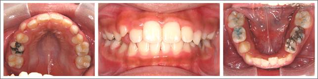 成長期の治療(1期治療)ガタガタの歯並び 施術後