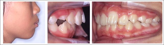 成長期の治療(1期治療)出っ歯(上の前歯の突出感) 施術前