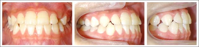 成長期の治療(1期治療)受け口(前歯の反対咬合) 施術後