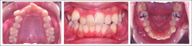 永久歯列からの治療 ガタガタの歯並び 施術前