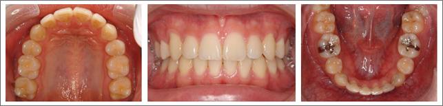 永久歯列からの治療 ガタガタの歯並び 施術後