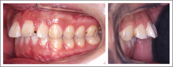 永久歯列からの治療 上の前歯の突出感 施術前