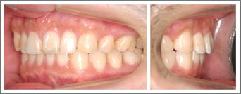 永久歯列からの治療 上の前歯の突出感 施術後