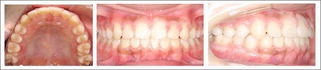 永久歯列からの治療 ガタガタの歯並び 歯を抜かずに配列して治療 施術後