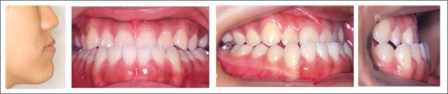 永久歯列からの治療 重度の受け口(骨格性の反対咬合) 施術前