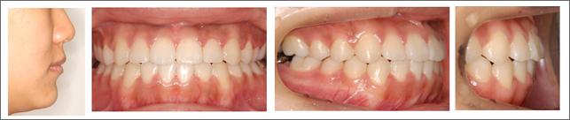永久歯列からの治療 重度の受け口(骨格性の反対咬合) 施術後